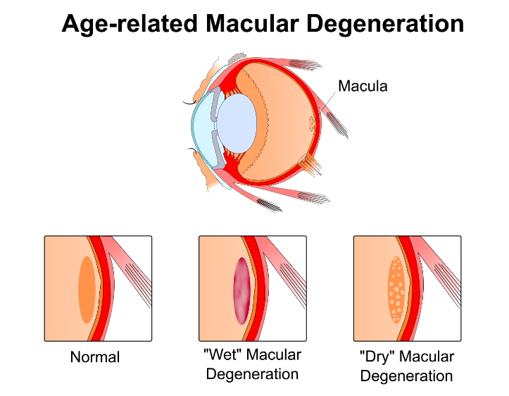 macular degeneration a group of diseases that result in a loss of detailed vision Macular degeneration condition: macular degeneration is a problem in the part of the eye that controls your sharpest central vision it is a.