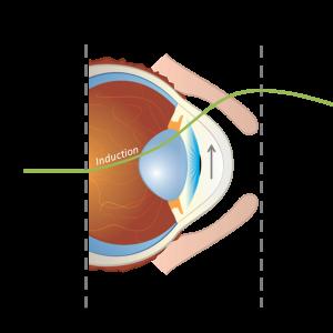 Glaucoma Preclinical Ocular Disease Models
